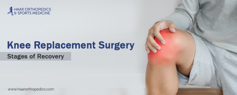Knee Replacement Surgery – Stages of Recovery